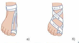 Повязки на ноги своими руками 42